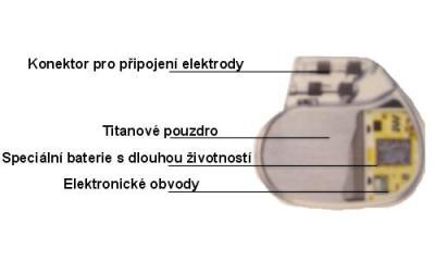 kardiostimulárot.JPG